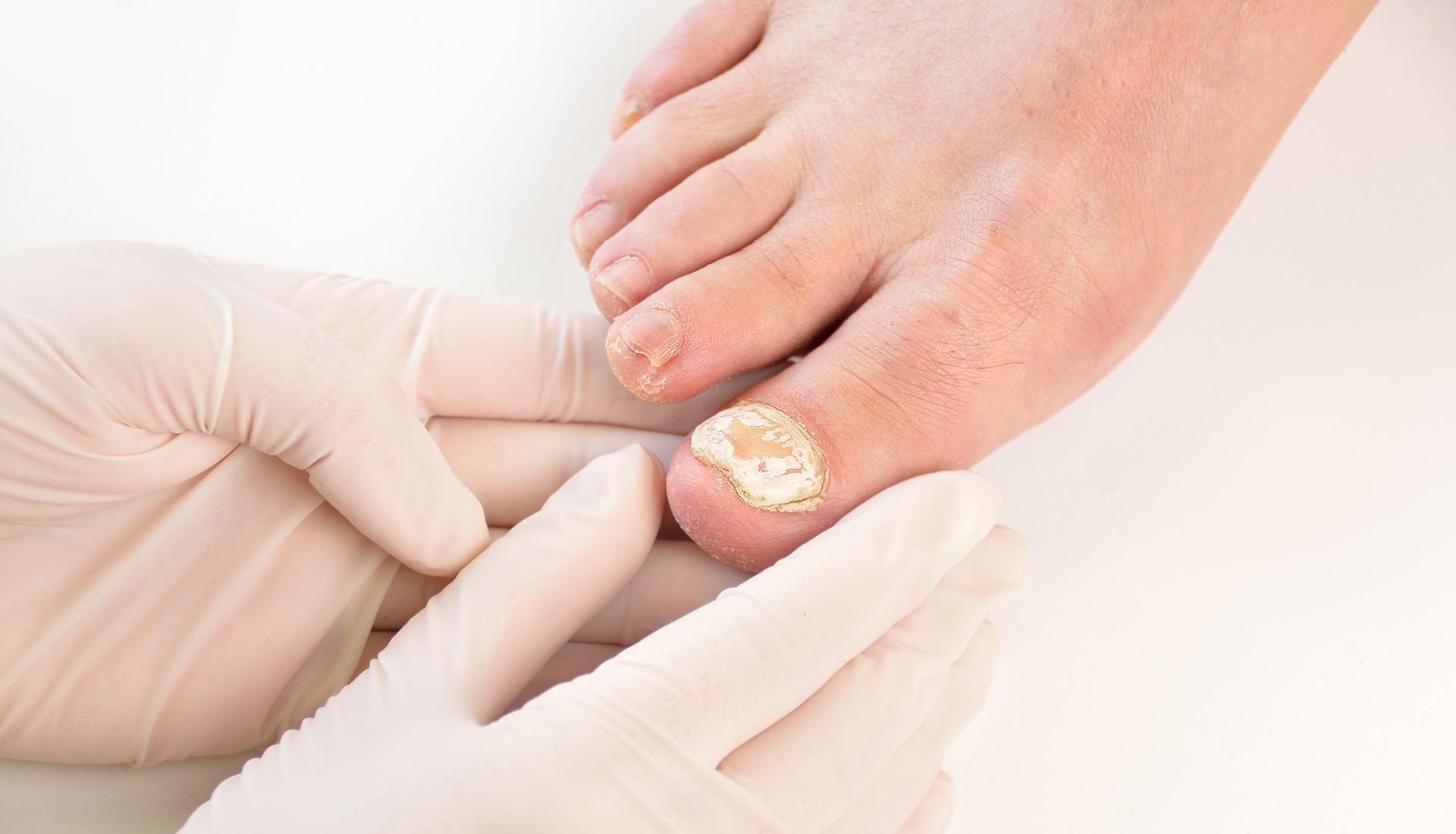 Grzybica stóp i paznokci leczenie Tarnów