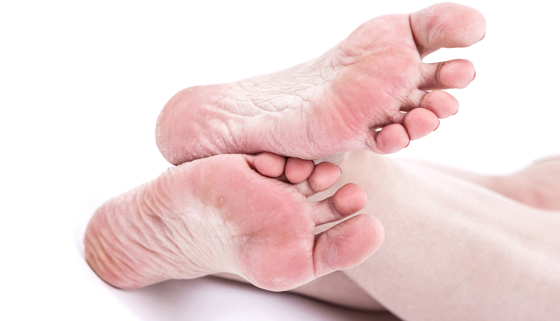 leczenie grzybicy stóp Tarnów